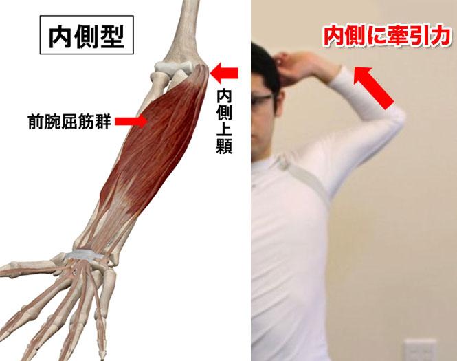 内側型の野球肘