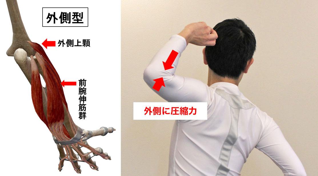 外側型の野球肘