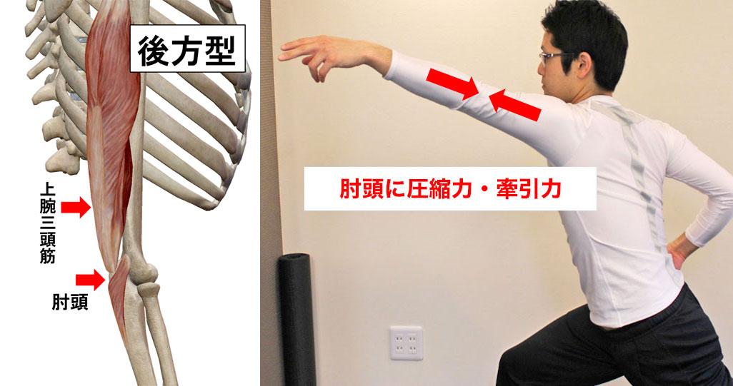 後方型の野球肘